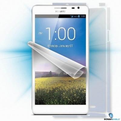 ScreenShield fólie na celé tělo pro Huawei Mate M1